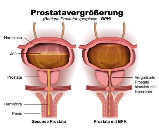 Gutartige Prostatavergrößerung in der Praxis Eidler Urologie Tulln